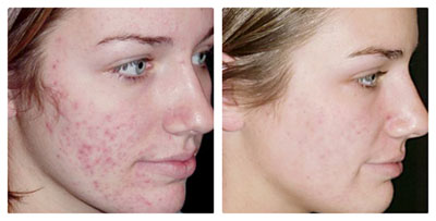 Laser Acne Treatment – NaturalBeautyLaser com