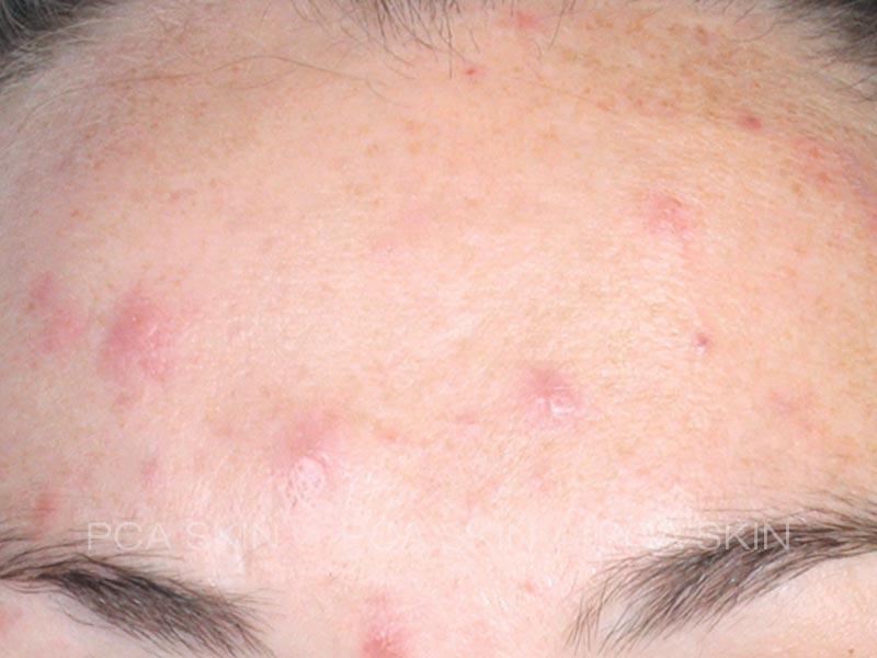 acne-before-1
