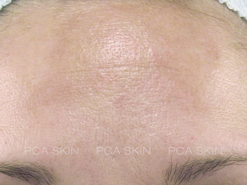 hyperpigmentation-after-1