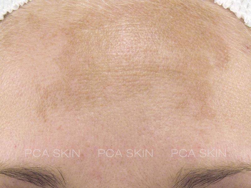 hyperpigmentation-before-1