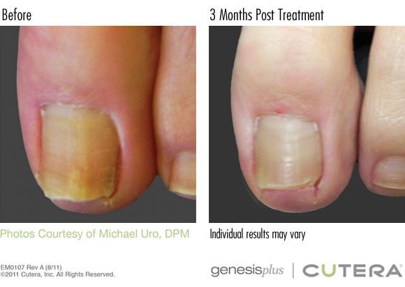 toe-nail-fungus-before-after-cutera-genesis-laser-treatment